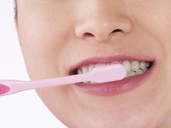 歯肉炎の画像